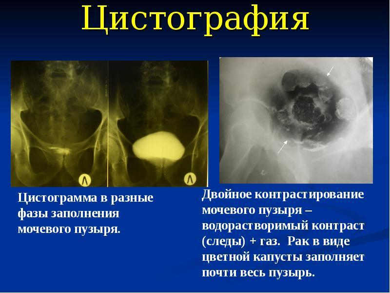 Цистография у детей: что это, показания и как делается   все о здоровье почек