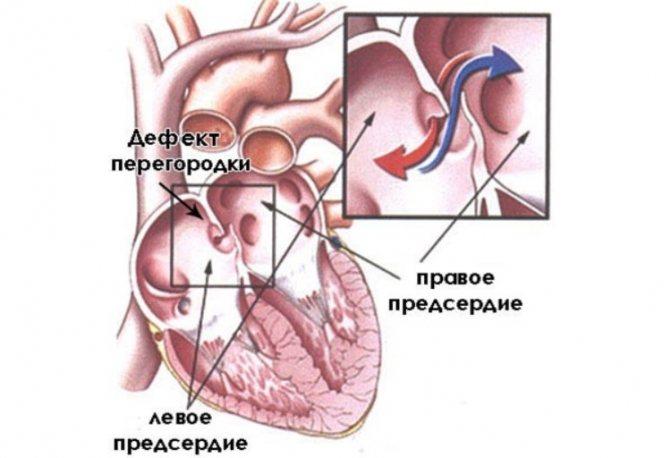Причины появления дефекта межпредсердной перегородки сердца и лечение патологии