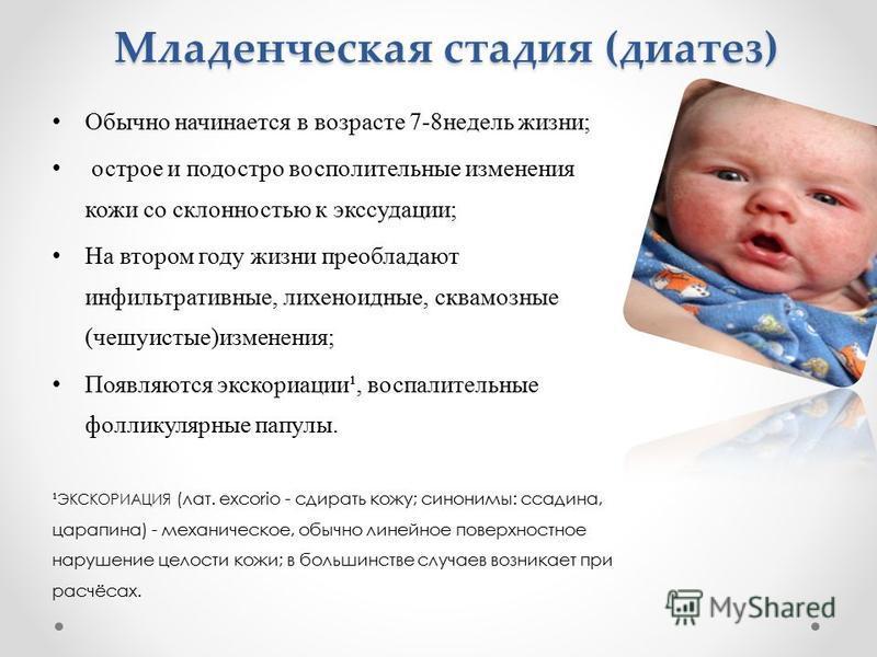 Диатез у ребенка: как лечить нервно-артритический, экссудативно-катаральный, гипопластический