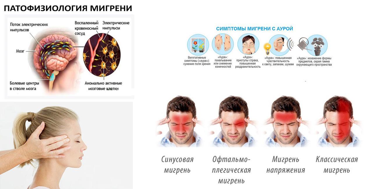 Мигрень у детей — скрытая угроза: симптомы и лечение