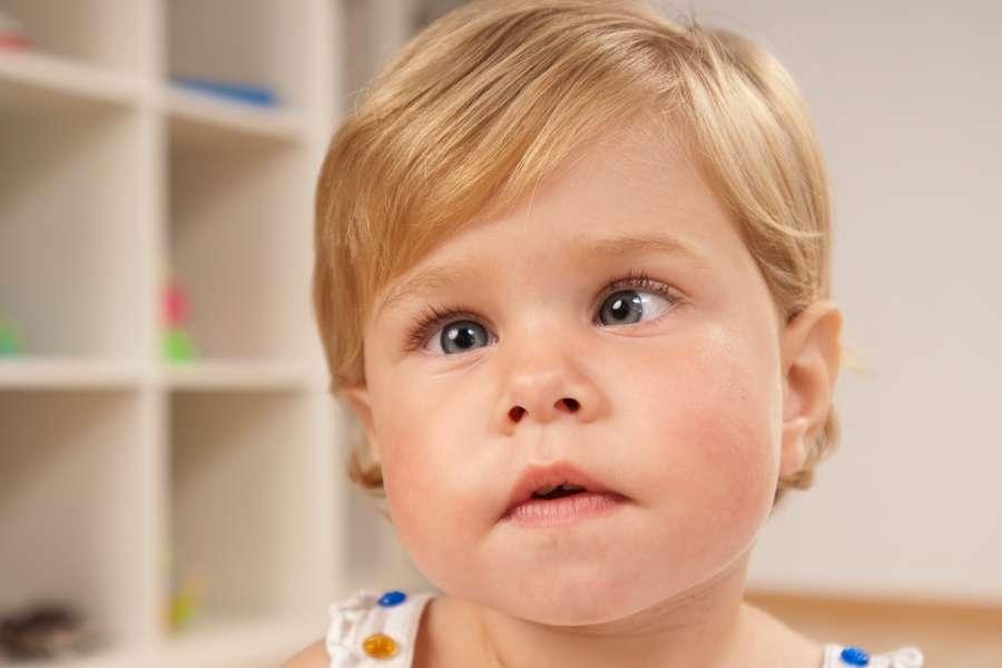 Косоглазие у новорождённого: норма или отклонение?