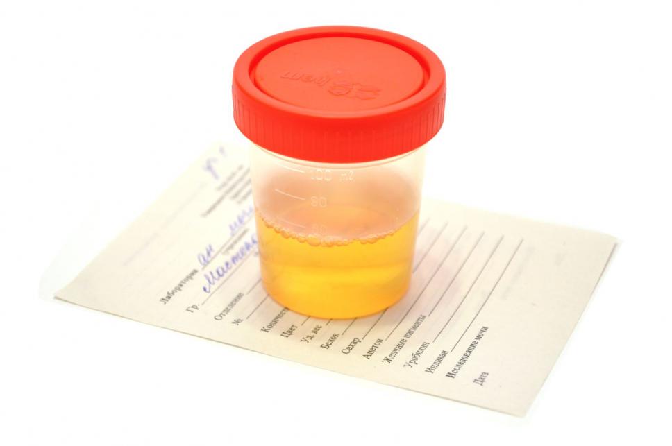 Характеристика  диастазы в моче и специфика анализа