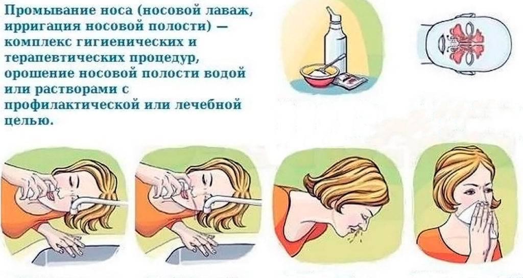 Как промывать нос: 7 устройств - сприцовка в домашних условиях при заложенности, ринолайф от насморка, носовой душ, груша для ноздри