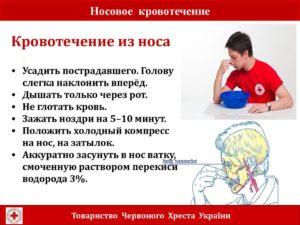 Кровь из носа у ребенка причины (4, 5, 6, 7, 8 лет): почему часто течёт ночью - лечение