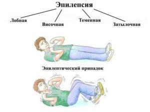 Эпилепсия: причины возникновения у подростков, симптомы