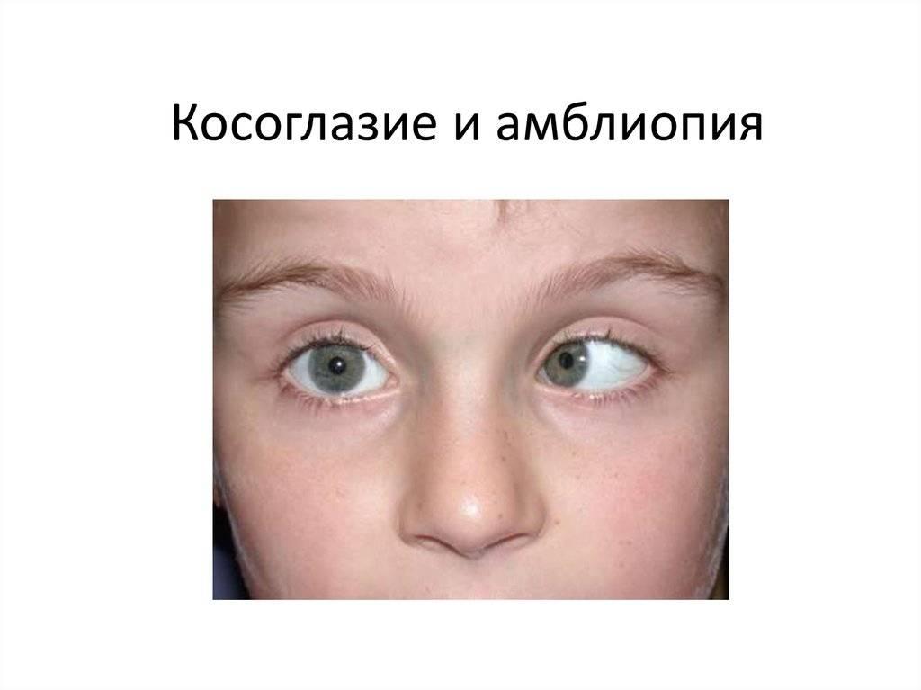 Амблиопия глаз у детей – причины, симптомы и лечение (фото)