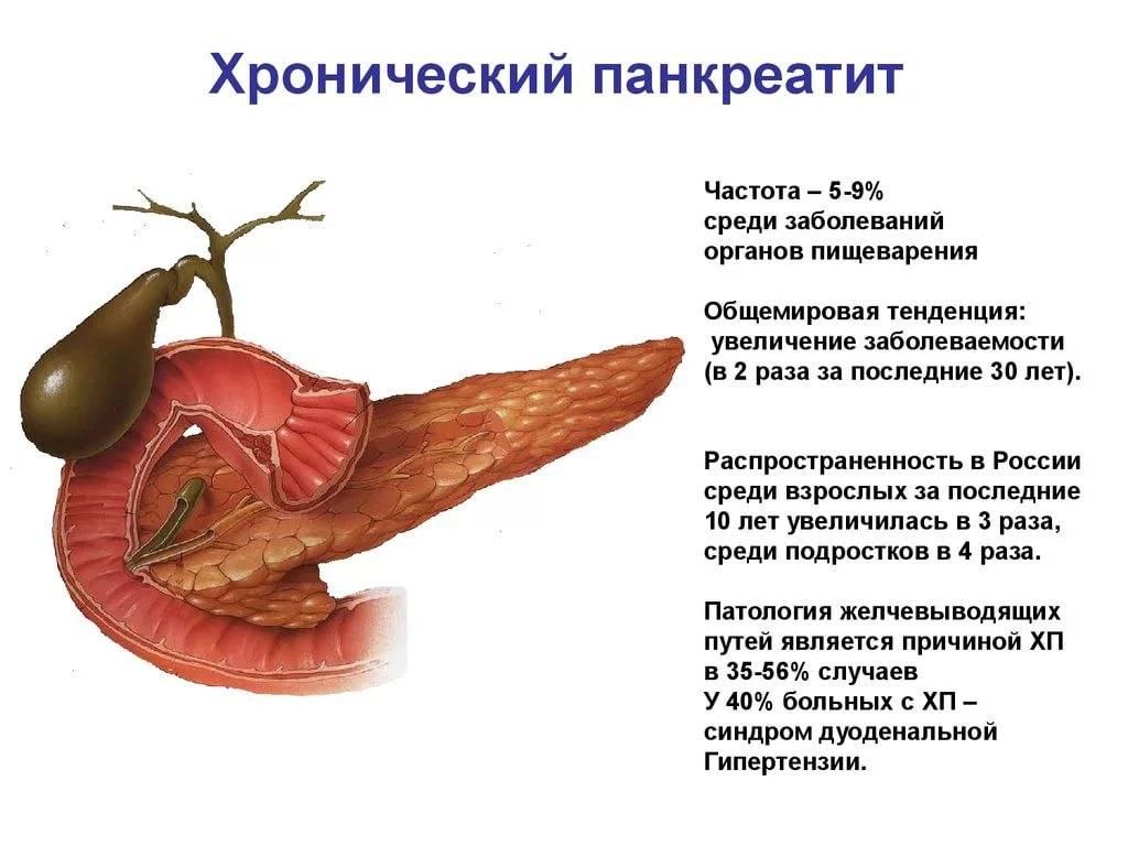 Реактивный панкреатит у детей: симптомы, лечение, диагностика, профилактика, последствия и осложнения