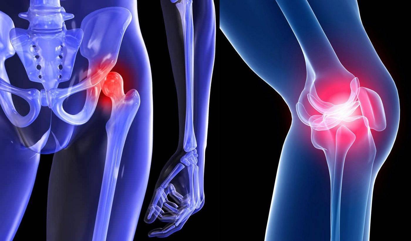 Артрит тазобедренного сустава у детей: симптомы и лечение заболевания