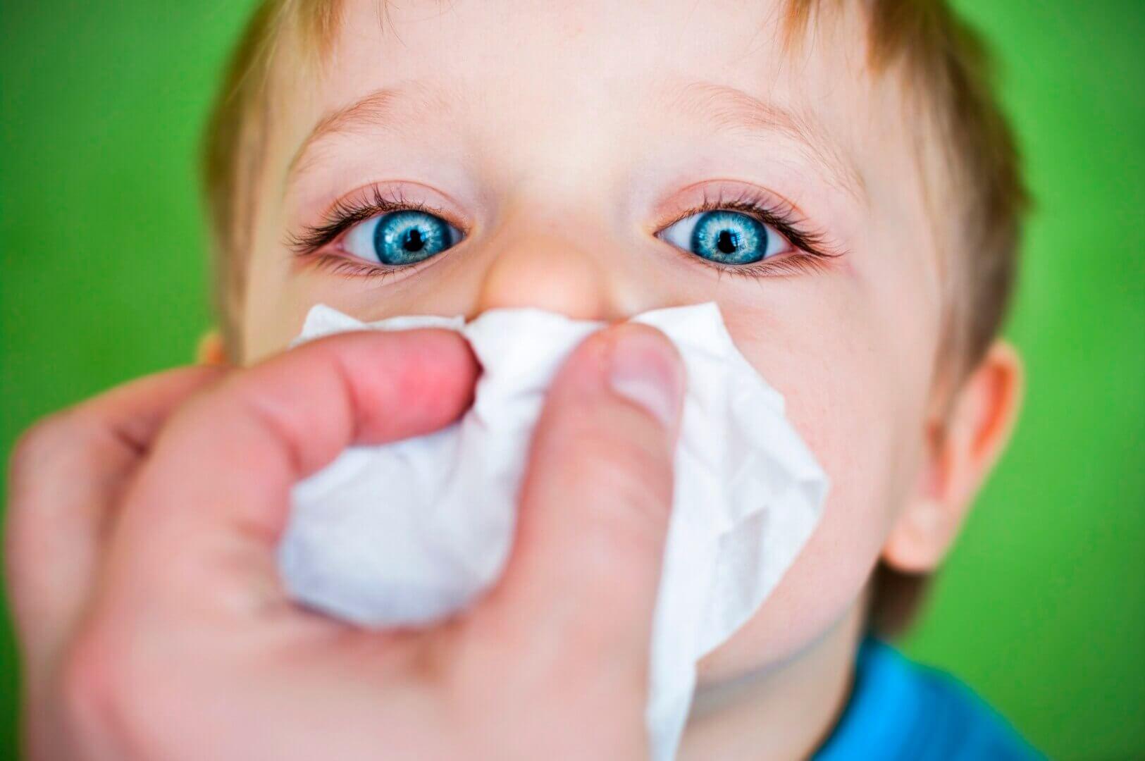Зеленые сопли и конъюнктивит у ребенка: причины, лечение, профилактика