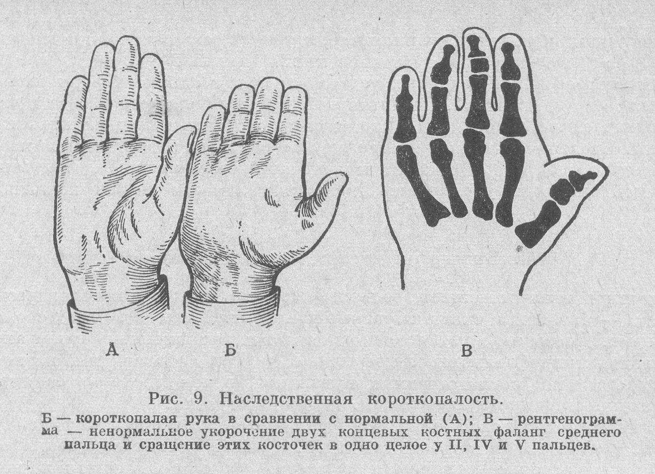 Брахидактилия: особенность или болезнь?