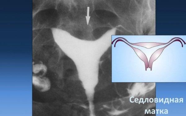Получится ли стать мамой после гистерэктомии
