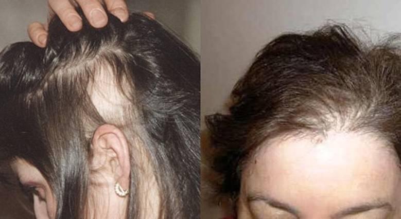 У ребенка выпадают волосы: причины и лечение