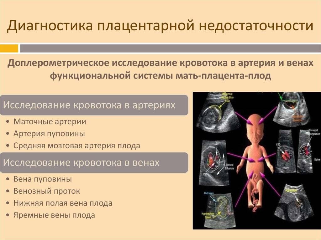 Нарушение кровотока 1а степени лечение