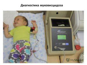 Основные признаки и диагностика муковисцидоза у ребенка