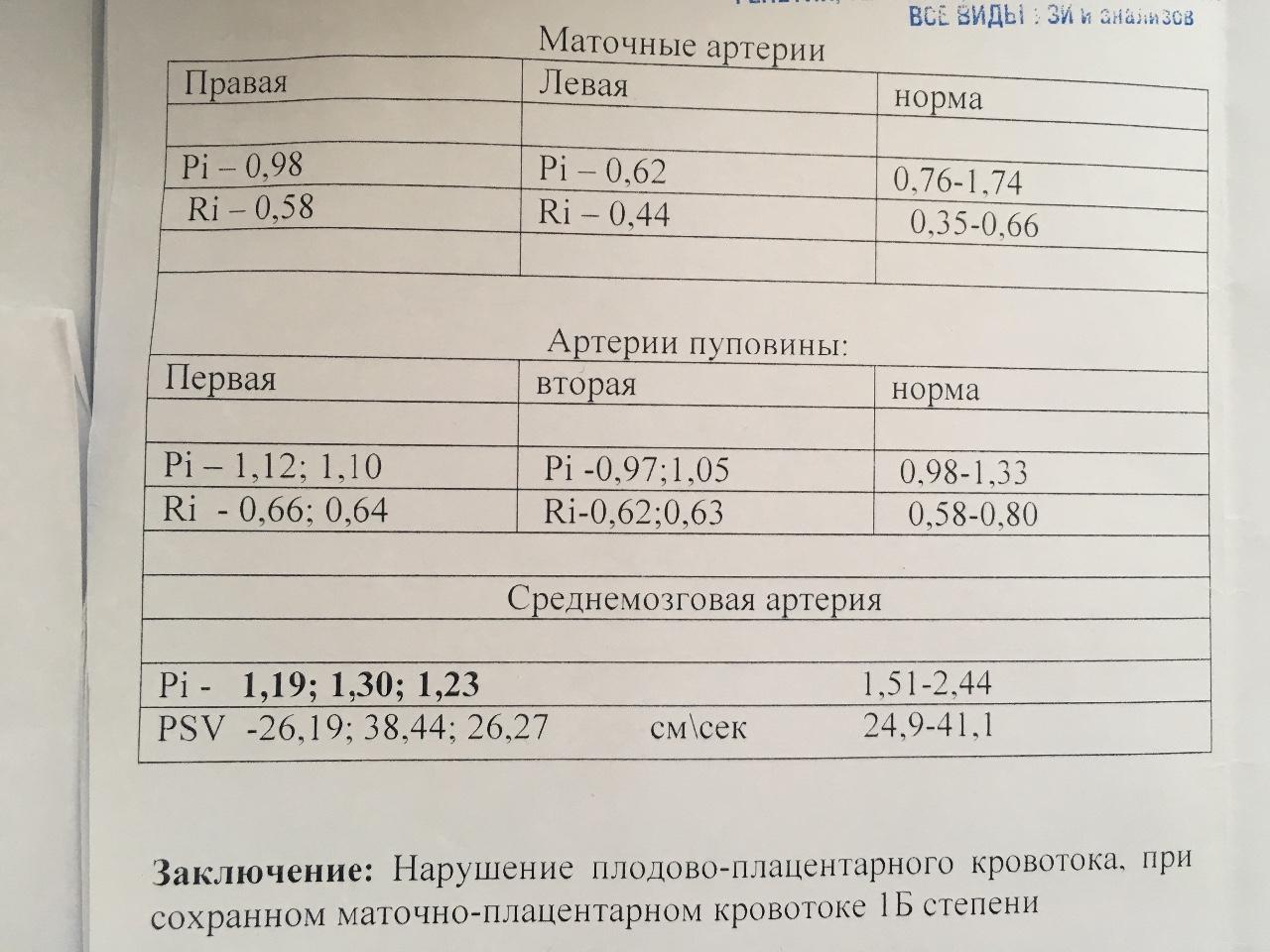 Нарушение кровотока 2 степени при беременности последствия для ребенка