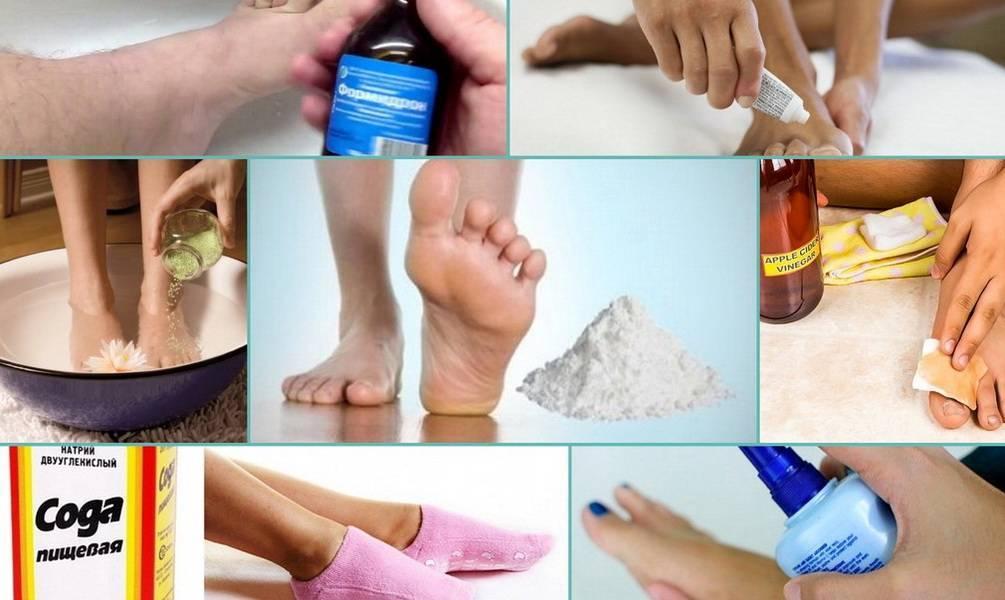 Как быстро и навсегда избавиться от запаха ног в домашних условиях