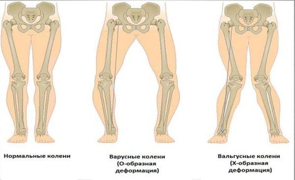 Лечение вальгусной деформации коленных суставов у детей с применением ЛФК