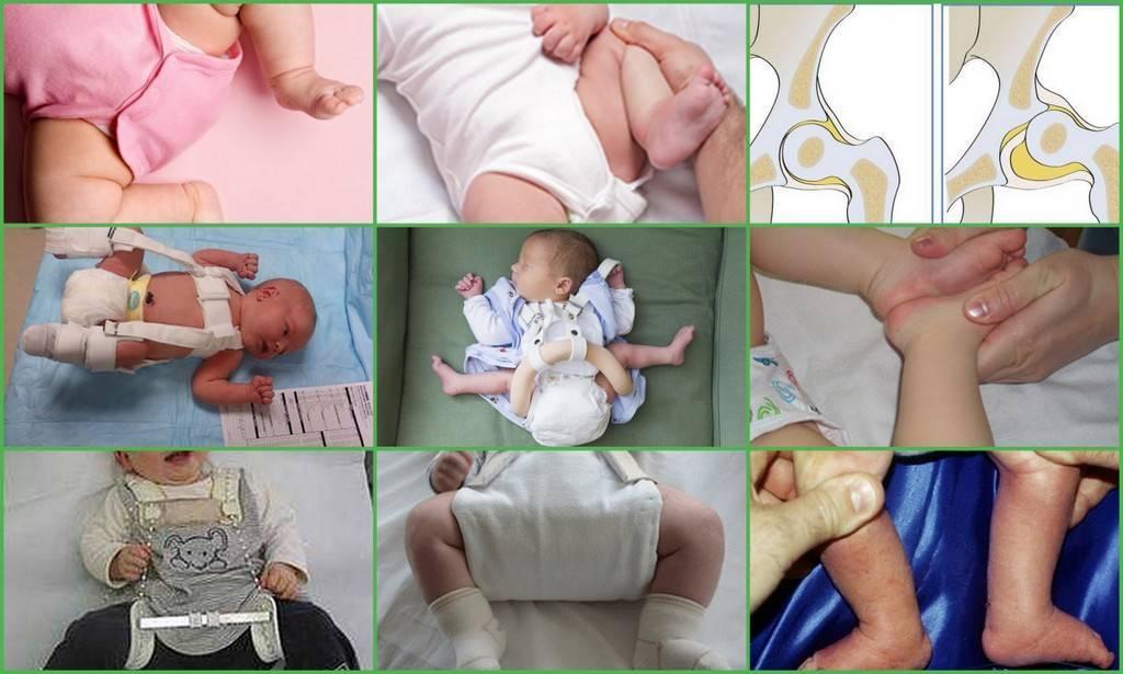 Дисплазия ног у детей: причины, симптомы, методы лечения и последствия