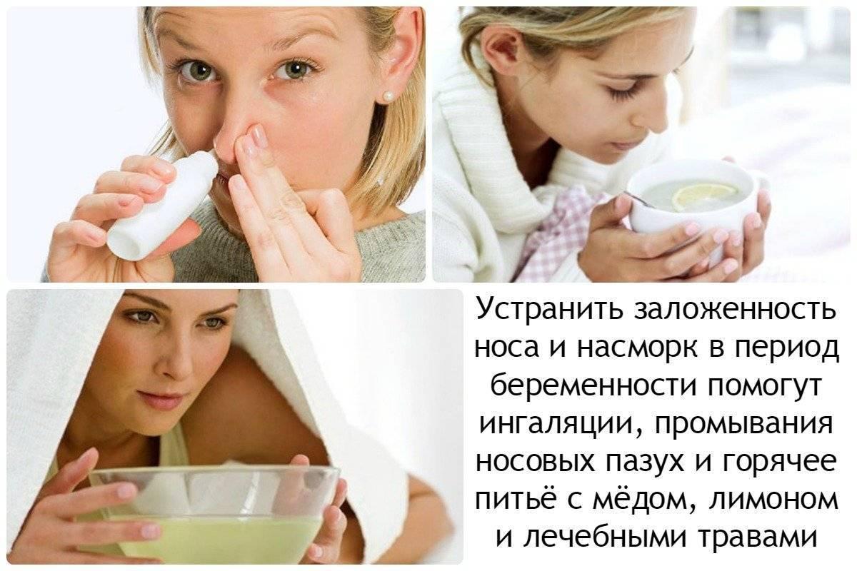 Заложен нос и насморк при беременности: что делать, чтобы снять заложенность, как бороться в домашних условиях?
