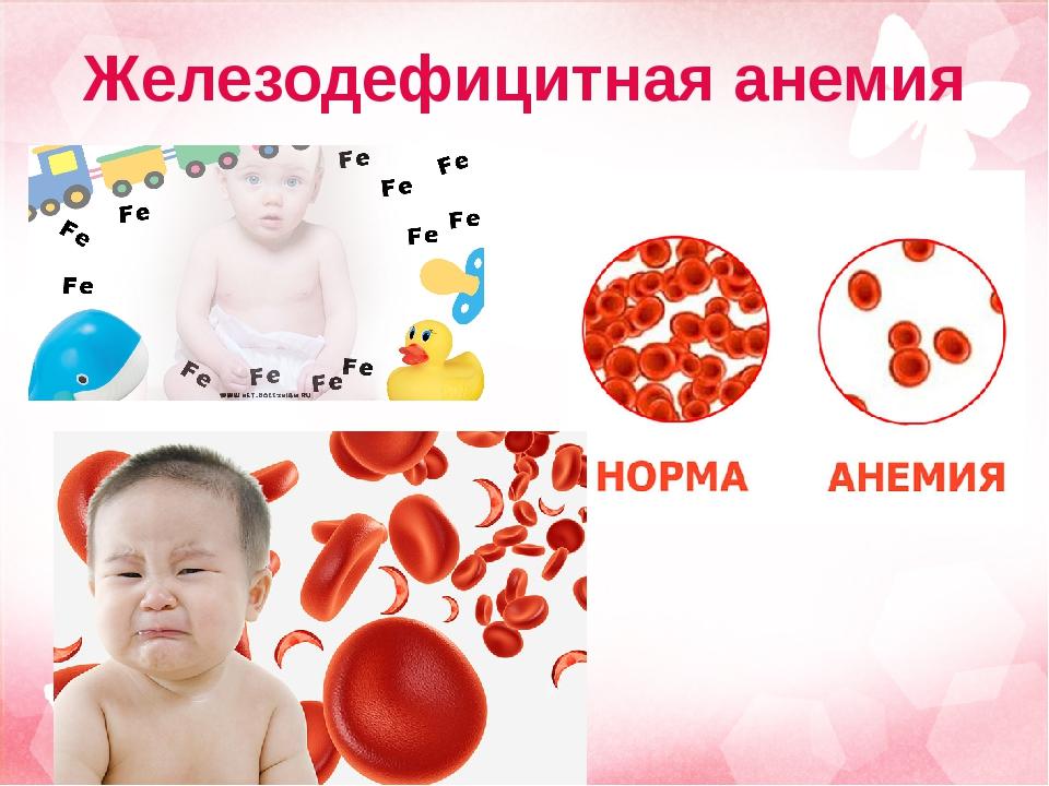 Анемия у детей: симптомы и лечение железодефицитной и гемолитической анимий, профилактика, признаки и классификация
