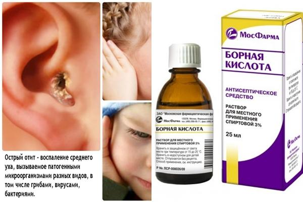 Борная кислота при боли в ушах: инструкция по применению при лечении отита, а также поможет ли это средство и как оно действует?