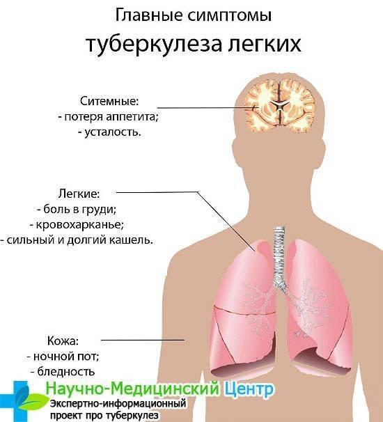 Туберкулез у детей: первые признаки, симптомы, пути заражения, формы, диагностика, лечение, профилактика