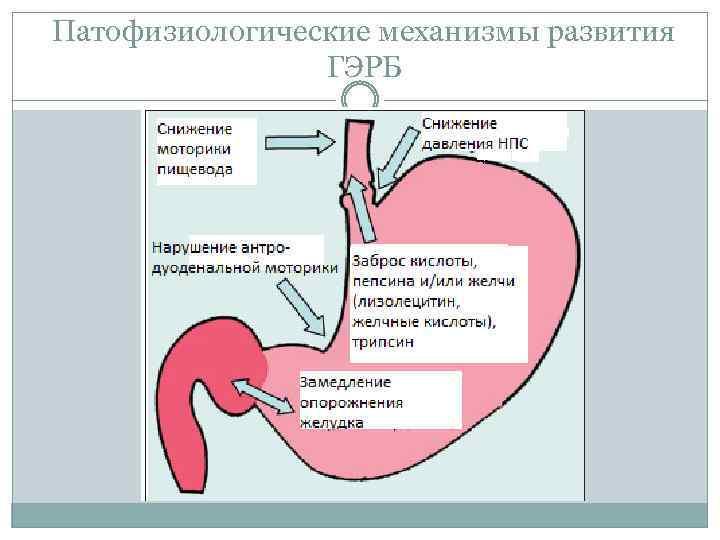 Гастроэзофагеальный рефлюкс у новорожденных детей: норма или патология?