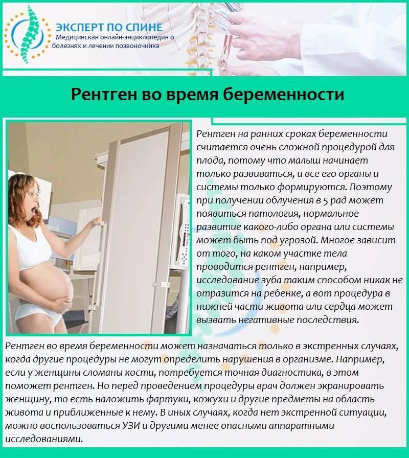 Зачем нужна флюорография мужа при беременности - wikimedexpert.ru