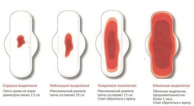 Может ли быть менструация, если наступила беременность, возможны ли месячные через неделю или две после зачатия?