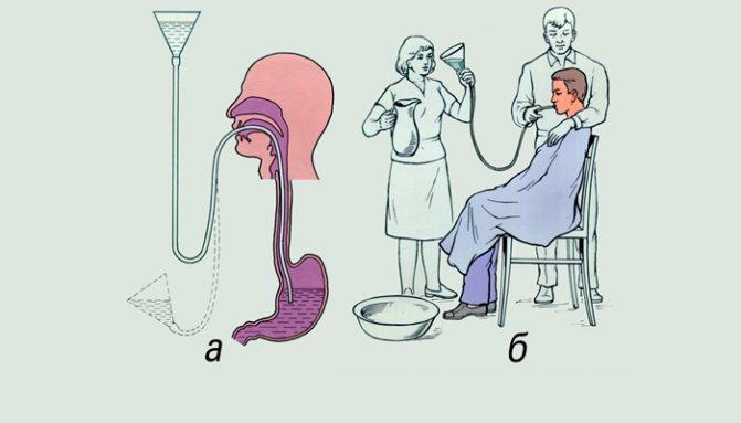 Промывание желудка у детей: алгоритм, техника