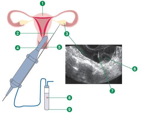 Пункция фолликулов при эко: как происходит процедура, подготовка