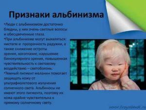 Люди альбиносы с красными. «белая ворона», или особенности здоровья и развития ребенка-альбиноса