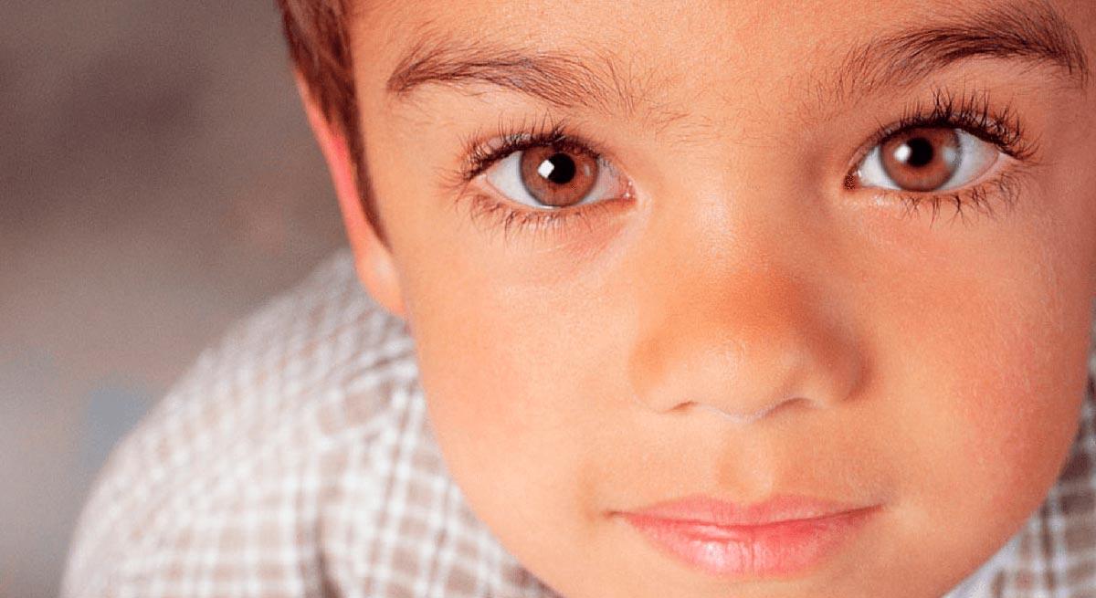 Степени амблиопии - что такое синдром ленивого глаза, классификация заболевания и лечение у детей и взрослых