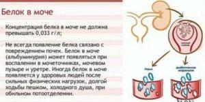 Белок в моче у беременных: норма, что означает повышенный, лечение, чем опасен