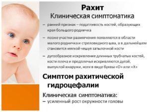 Признаки рахита у грудничков | уроки для мам