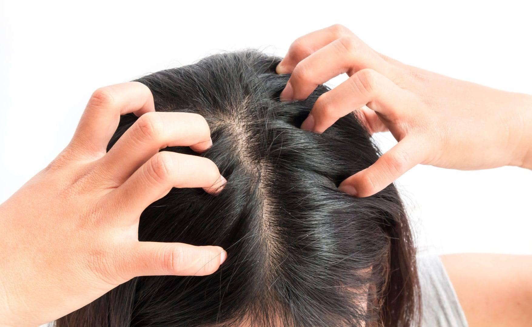 Перхоть у подростка: как избавиться и чем лечить на голове, почему появляется в 12 лет - причины и лечение