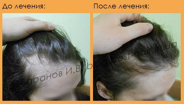 У ребенка сильно выпадают волосы - причины и что делать?