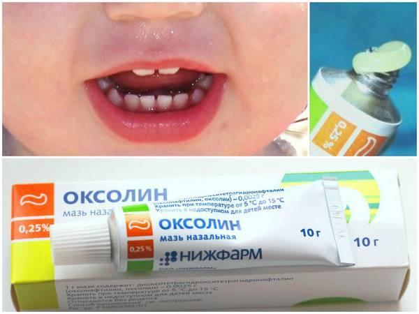 Лечение стоматита у детей: препараты и домашние средства