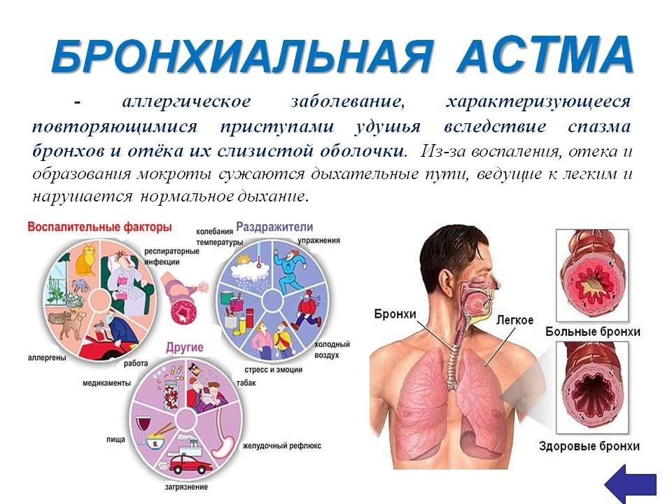 Первые признаки и симптомы бронхиальной астмы у детей, лечение и профилактика болезни