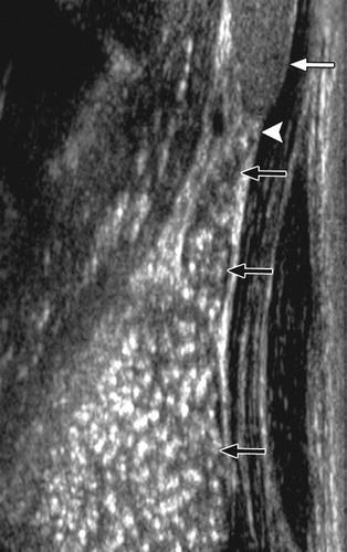 Вилочковая железа: важность органа и его уз-обследование