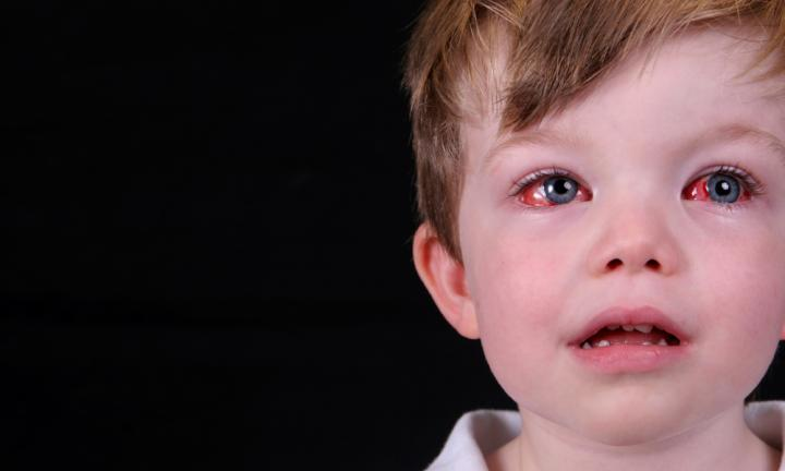 ?конъюнктивит глаз: лечение у детей ?мазями, ?каплями и ?народными средствами – профилактика