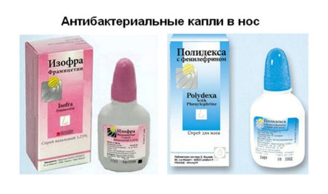 Капли в нос с антибиотиком взрослым и для детей - антибактериальный спрей от насморка, список с названиями самых эффективных от заложенности