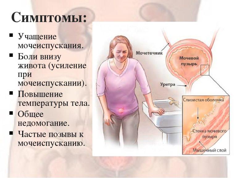 Почему болит кишечник при беременности, причины боли