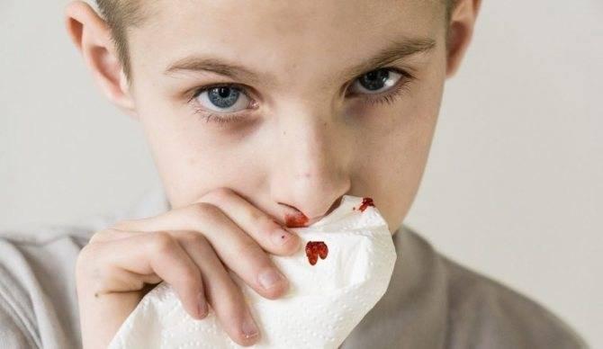 3 основных метода лечения дискинезии желчевыводящих путей у детей