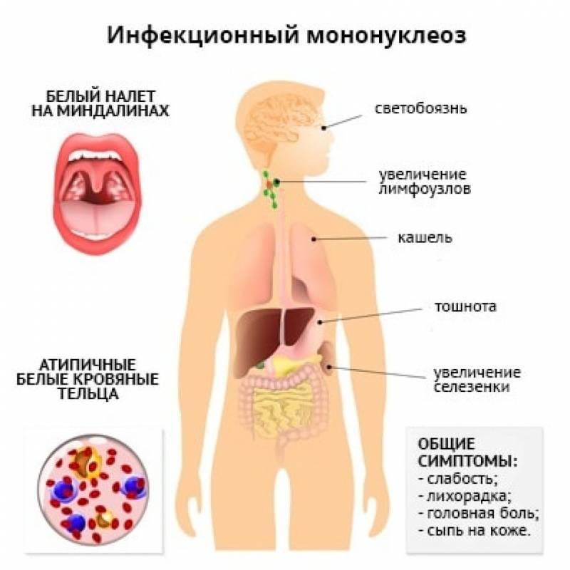 Диета при мононуклеозе у взрослых. диета при мононуклеозе у детей