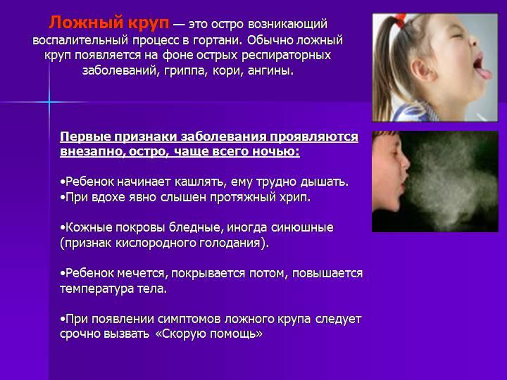 Ложный круп: симптомы и лечение у детей, правила первой неотложной помощи. ложный круп