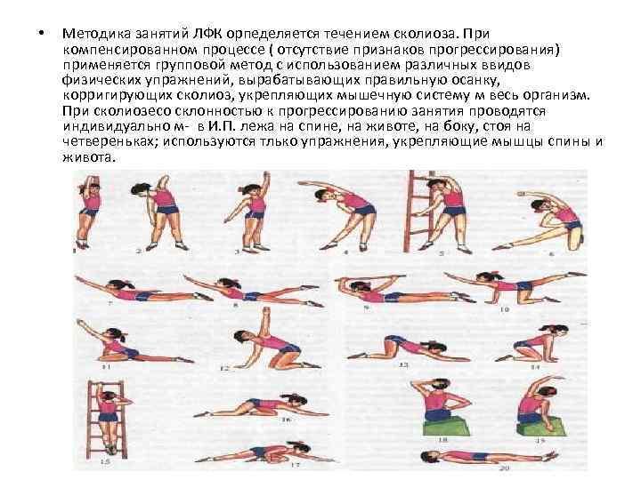 Лечебные физические упражнения при сколиозе