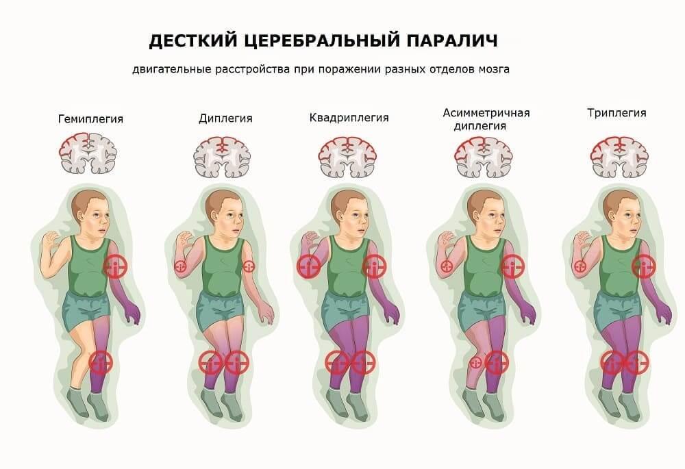 Дцп: причины возникновения, развитие и лечение