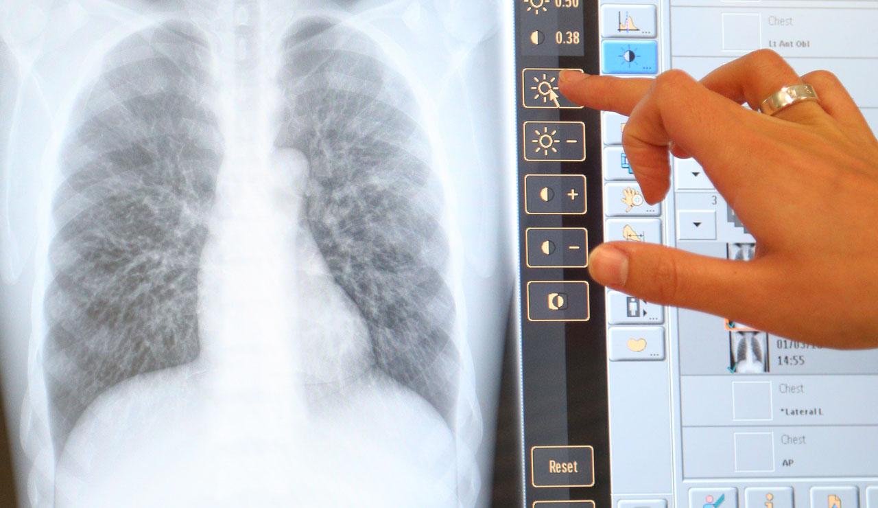Рентген легких. показания, противопоказания. методика проведения и подготовка к рентгену легких