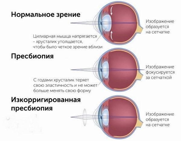 Гиперметропия слабой степени: что это такое, причины, симптомы, диагностика, лечение дальнозоркости, осложнения
